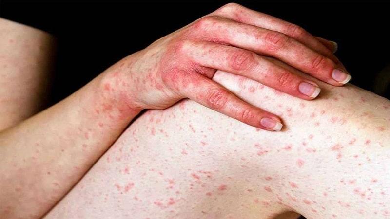 Mẩn đỏ, ngứa ngáy, mụn nước là những triệu chứng thường thấy