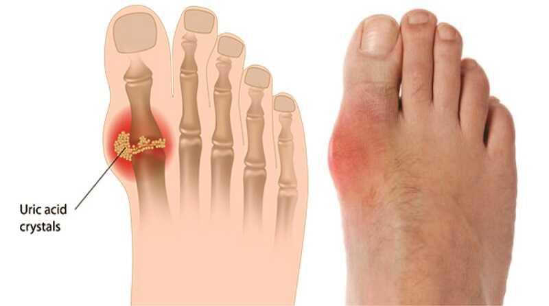 Người bệnh có dấu hiệu đau nhức nhiều khớp và tấy đỏ khớp