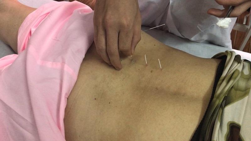 Sử dụng các bài thuốc Đông y hoặc tiến hành châm cứu, bấm huyệt giúp giảm đau, điều trị bệnh