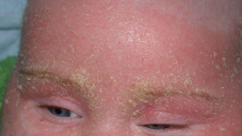 Viêm da bã nhờn không phải là chứng bệnh quá nguy hiểm
