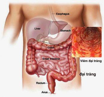 Viêm đại tràng là tình trạng bệnh gây ảnh hưởng rất lớn đến sức khỏe