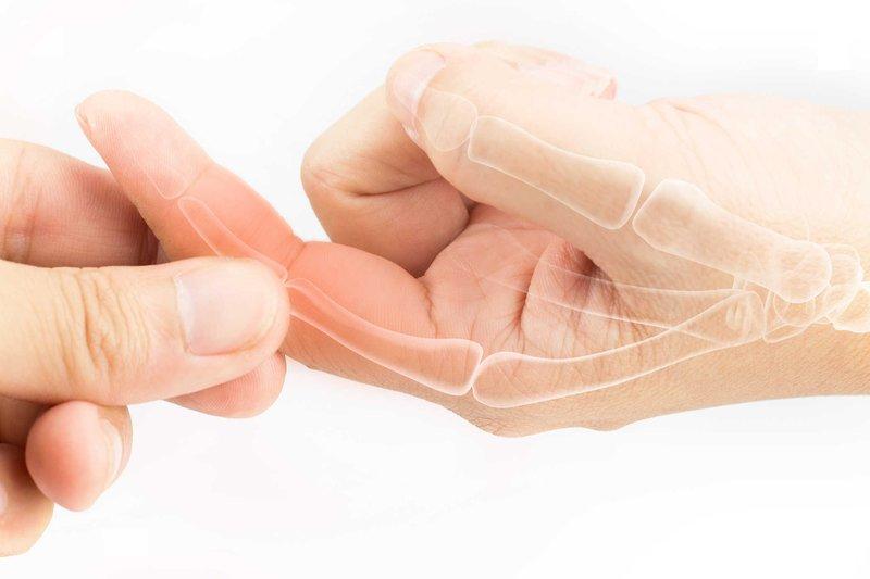 Viêm đau khớp ngón tay là một bệnh lý xương khớp xảy ra khi sụn khớp tại các ngón tay bị bào mòn, thoái hóa