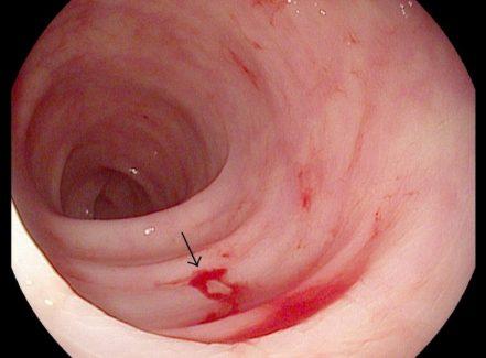 Tình trạng viêm kéo dài có thể gây chảy máu trong rất nguy hiểm