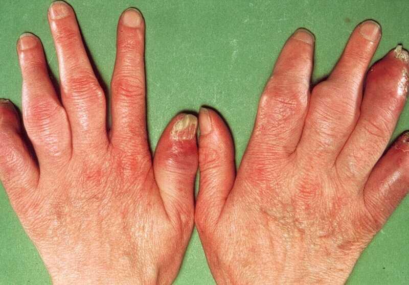 Viêm khớp vảy nến là bệnh lý viêm khớp xảy ra ở bệnh nhân bị bệnh vảy nến