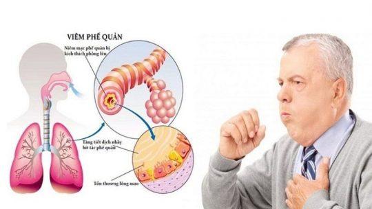Bệnh Viêm phế quản dễ biến chứng nguy hiểm, ai cũng có thể mắc