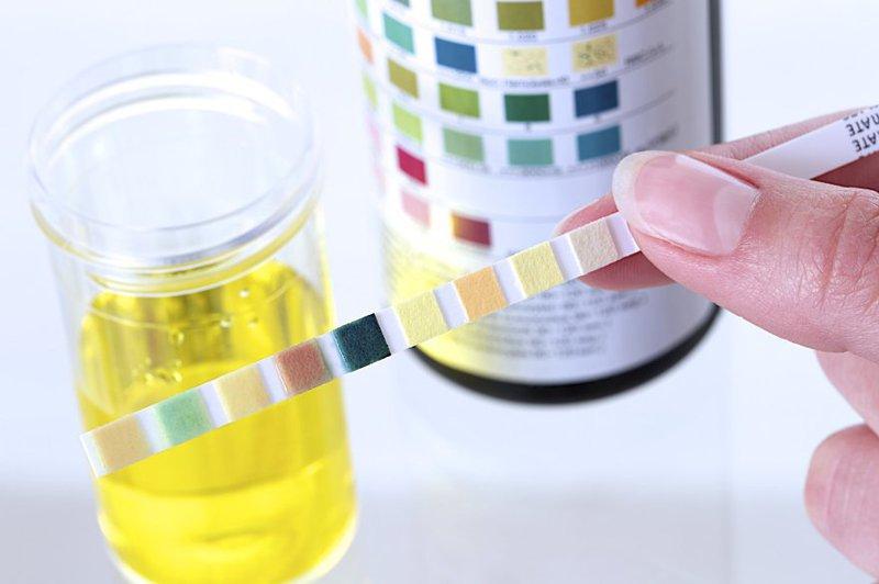 Xét nghiệm nước tiểu sẽ giúp các bác sĩ nhận biết chính xác chức năng thận của nam giới