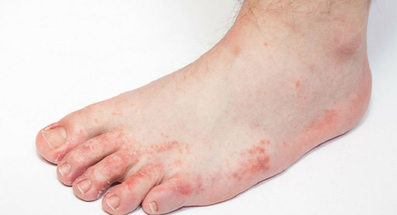 Bệnh tổ đỉa ở chân khởi phát khi người bệnh xuất hiện các mụn nước ăn sâu ở lòng bàn chân, ngón chân hoặc rìa bàn chân