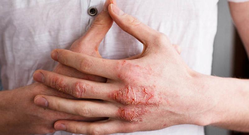 Bệnh gây nên những bất tiện trong sinh hoạt hàng ngày