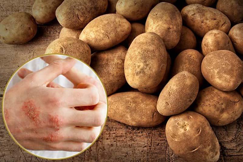 Cách chữa chàm bằng khoai tây được đánh giá là dễ thực hiện, an toàn cho sức khỏe người bệnh