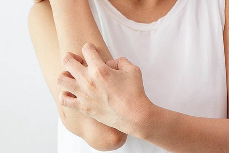 Vùng da dễ bị bệnh thường là khuỷu tay, đầu gối