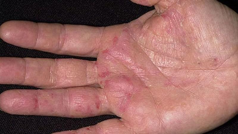 Chàm tổ đỉa là một dạng bệnh lý thuộc thể chàm Eczema