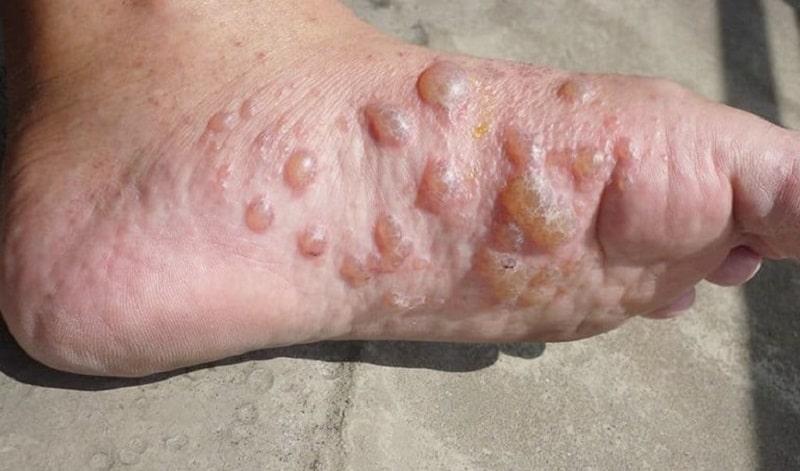 Các mụn nước có thể mọc khu trú thành từng cụm tại kẽ tay, kẽ chân hoặc mọc rải rác khắp bàn tay, bàn chân