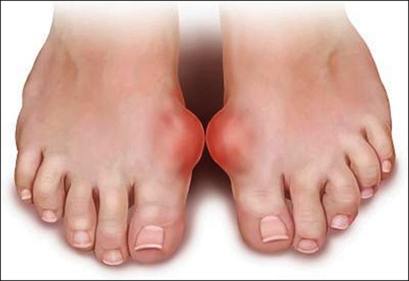 Bệnh gout là một trong những nguyên nhân gây đau khớp ngón chân