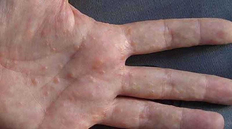 Bệnh tổ đỉa ở tay là bệnh lý thuộc dạng bệnh chàm nhưng các mụn nước chỉ mọc khu trú ở khu vực bàn tay