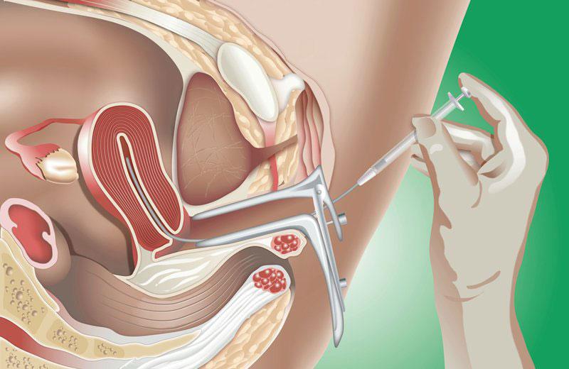 Thụ tinh trong tử cung là phương pháp được thực hiện vào thời điểm rụng trứng ở nữ giới