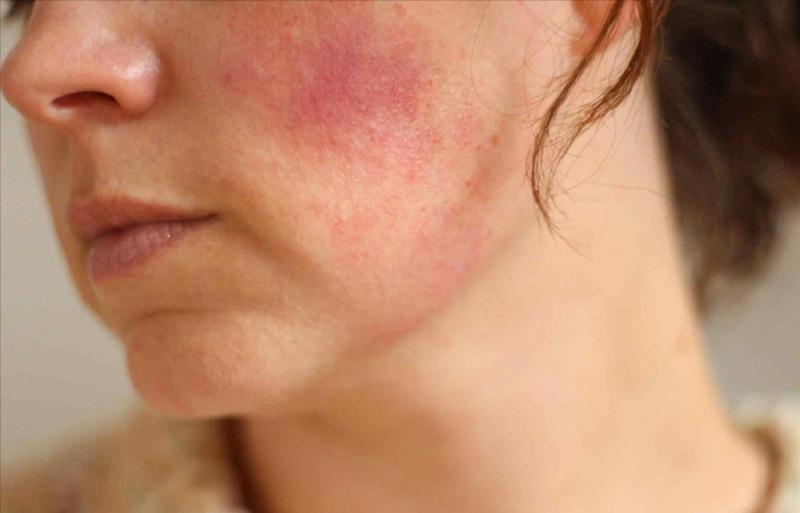 Bạn có thể cảm thấy ngứa ngáy vùng da đã thực hiện đốt nhưng tuyệt đối không được gãi