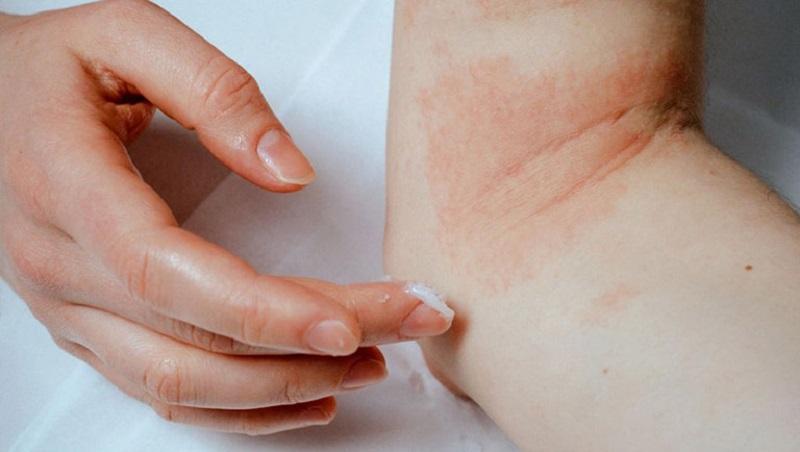 Người bệnh cần bôi kem dưỡng ẩm da thường xuyên để tránh bong tróc da