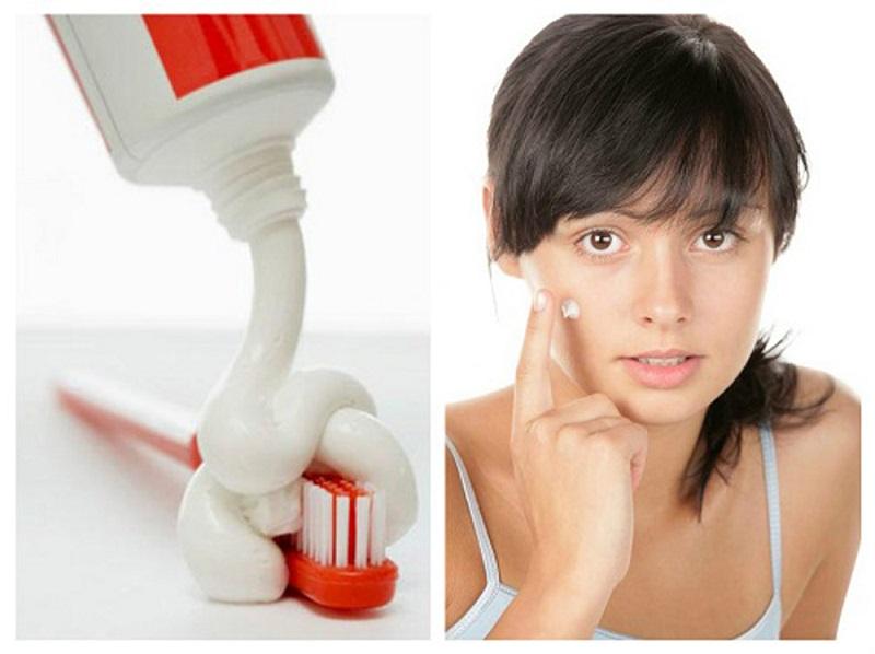 Cách trị mụn đầu đen bằng kem đánh răng sẽ ngăn ngừa sự phát triển của vi khuẩn gây mụn
