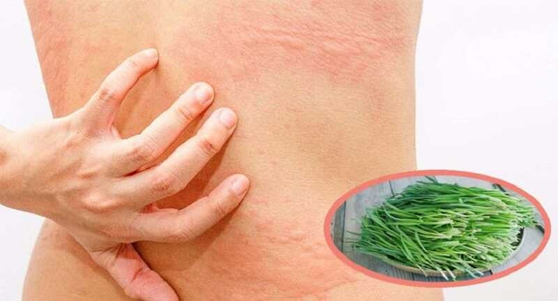 Lá hẹ có nhiều thành phần có lợi cho da, cải thiện triệu chứng mẩn ngứa mề đay