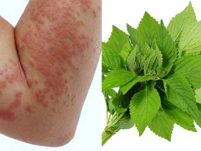 Chữa mề đay bằng lá kinh giới có hiệu quả tốt, giảm nhanh các triệu chứng ngoài da