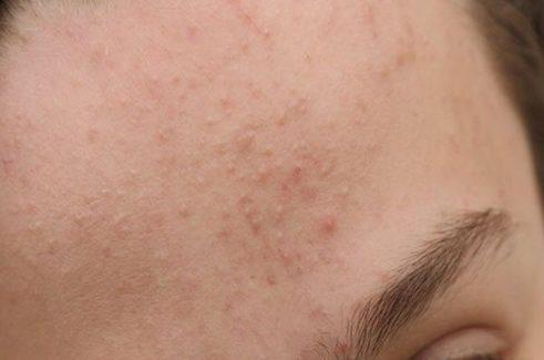 Da mặt sần sùi nhiều mụn ẩn gây mất thẩm mỹ cho người bệnh