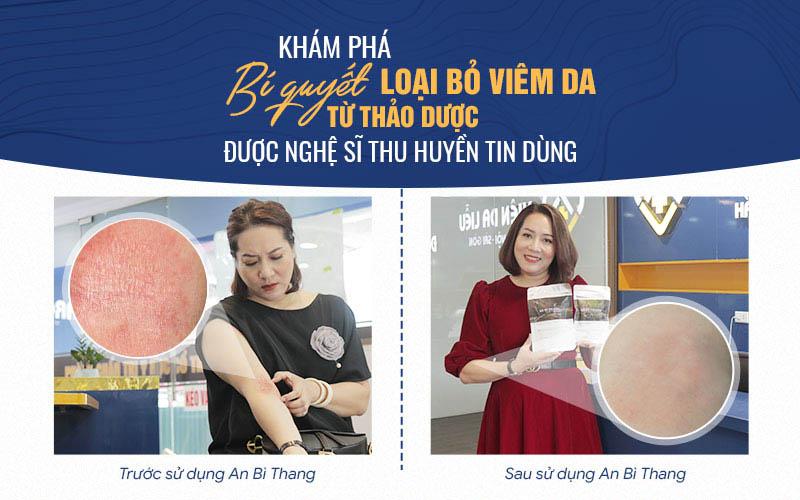 Hình ảnh TRƯỚC - SAU điều trị viêm da mãn tính với An Bì Thang của nghệ sĩ Thu Huyền