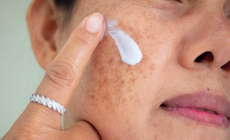 Kem trị nám chứa thành phần kết hợp, có khả năng thẩm thấu nhanh vào da