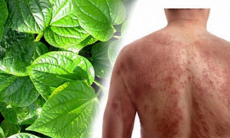 Dùng lá tắm chữa viêm da cơ địa là phương pháp điều trị bệnh lý da liễu toàn thân