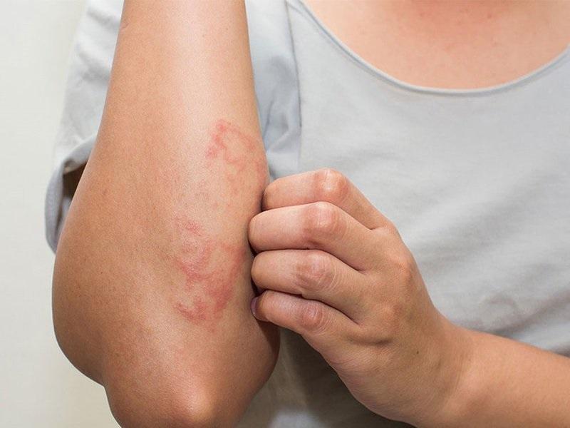 Thâm nhiễm da là một trong các biến chứng của mề đay mãn tính