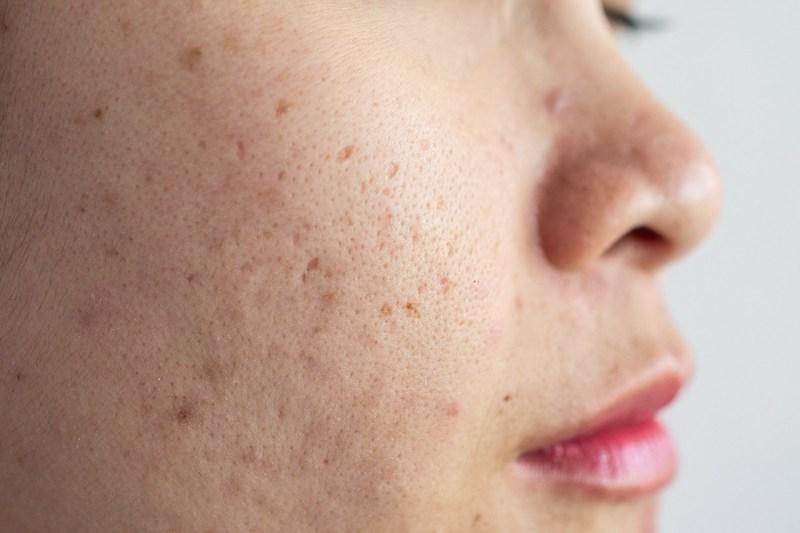 Mụn ẩn ở má là một dạng mụn không viêm, khiến da trở nên sần sùi