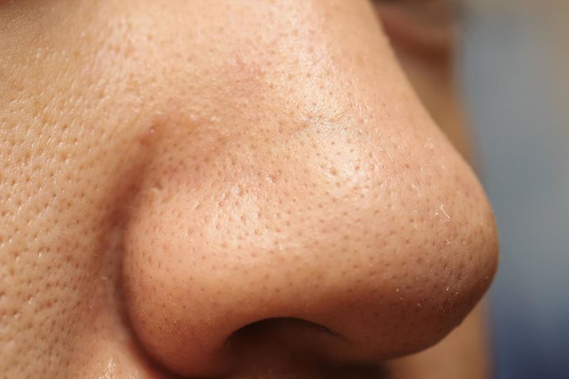 Mụn ẩn thường mọc nhiều ở mũi do mũi tiết nhiều bã nhờn