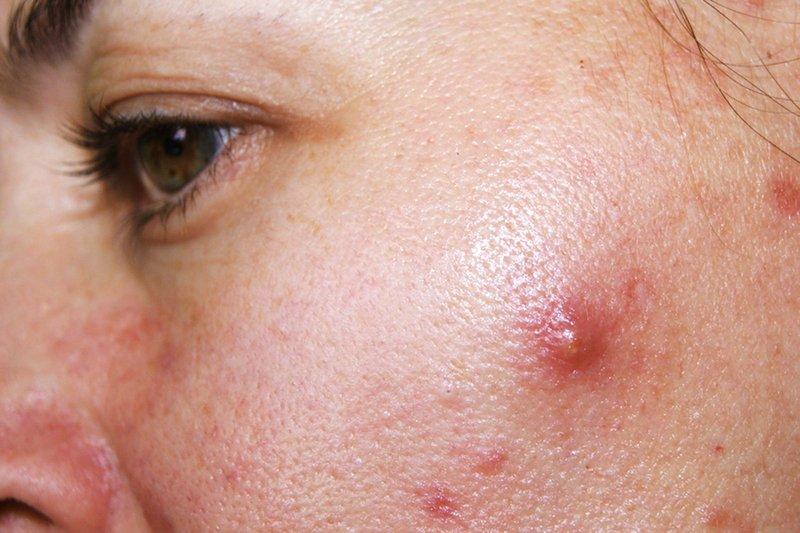 Mụn bọc ở má thường có kích thước lớn, nằm sâu dưới bề mặt da