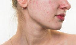Mụn nội tiết ở nữ là loại mụn hình thành từ sự rối loạn nội tiết tố bên trong cơ thể