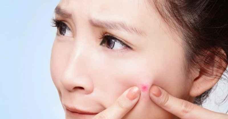 Thói quen nặn mụn nhiều có thể khiến các ổ viêm phát triển mạnh và hình thành nên mụn sưng đỏ không nhân
