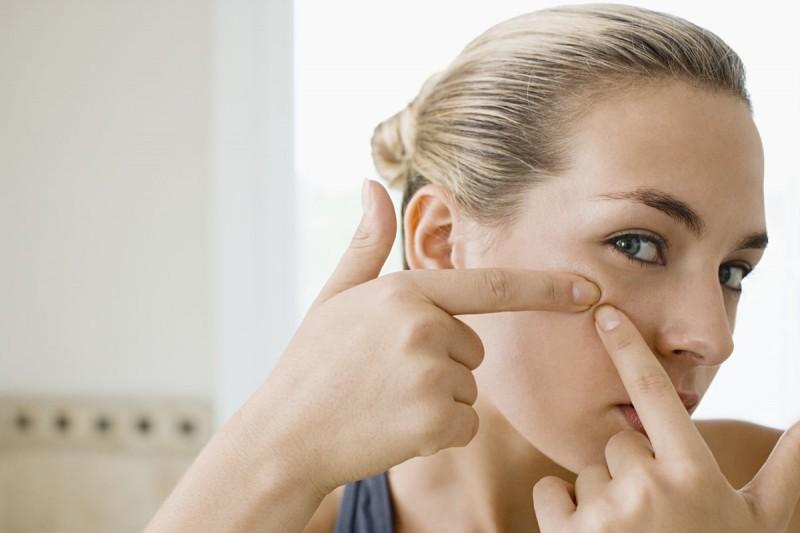Nặn mụn bằng tay sẽ khiến vi khuẩn lây lan sang các vùng da lân cận