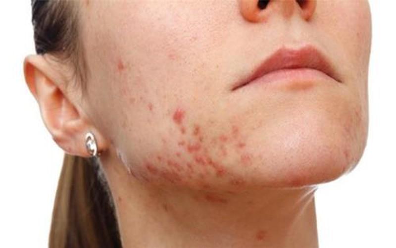 Tình trạng mụn sưng đỏ ở vùng quai hàm nặng sẽ gây nguy hiểm cho da của bạn