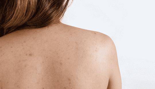 Mụn thâm ở lưng là tình trạng viêm nhiễm da thường gặp