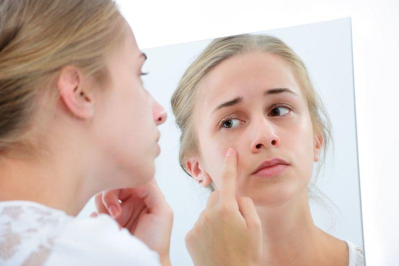 Phụ nữ trong thời kỳ kinh nguyệt bị rối loạn nội tiết tố cũng gây nên mụn