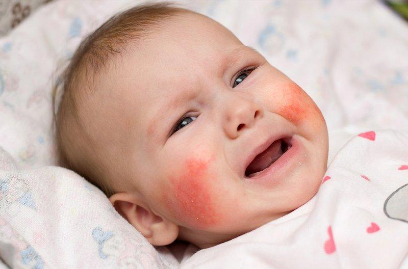 Viêm da thể tạng ở trẻ sơ sinh thường có các triệu chứng giống như mụn trứng cá