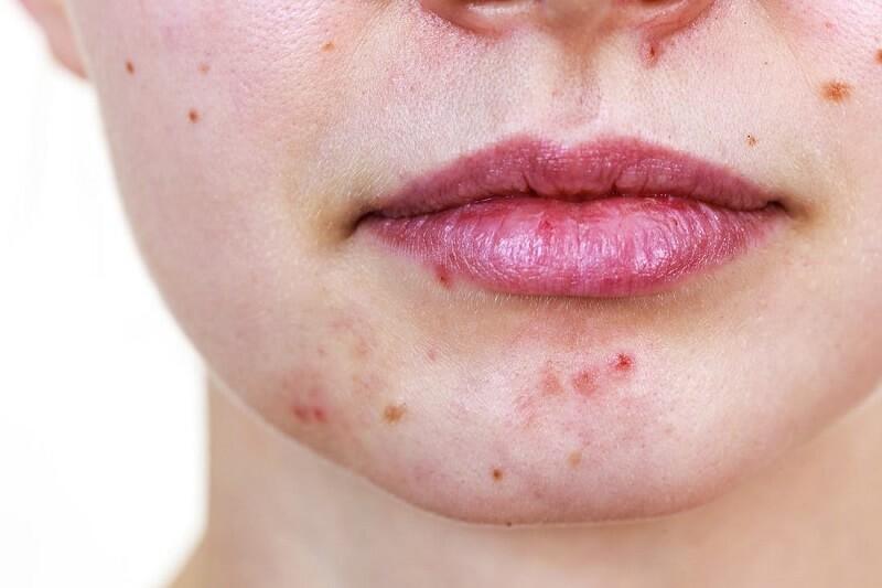 Sử dụng mỹ phẩm không phù hợp với da có thể khiến bạn bị nổi mụn quanh miệng