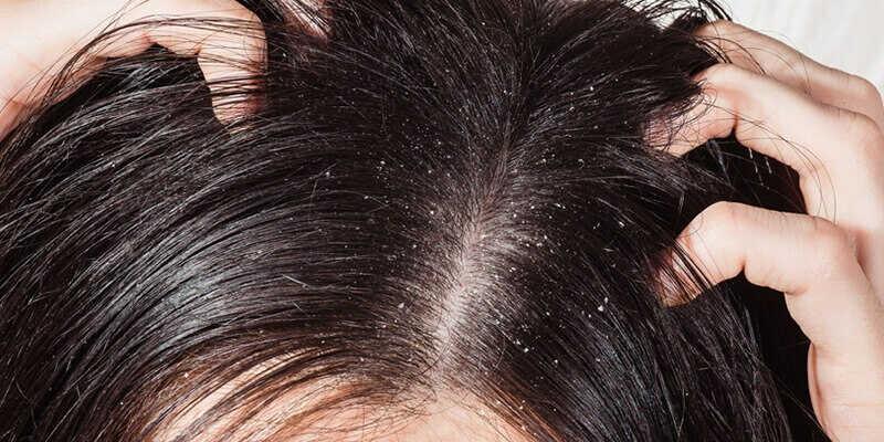 Triệu chứng phổ biến của mụn ở đầu là gàu nhiều, mọc thành từng mảng trắng