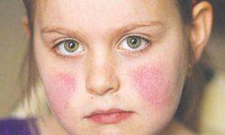 Lupus ban đỏ nếu không được điều trị có thể gây nhiều biến chứng nguy hiểm