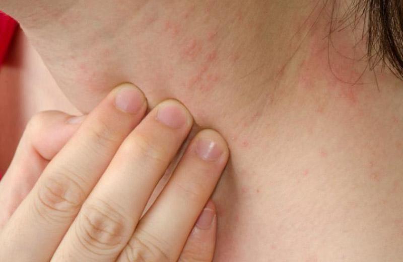 Có nhiều nguyên nhân gây nổi mẩn đỏ ở cổ