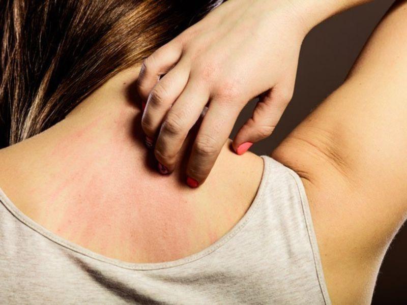 Chú ý tới bệnh viêm da tiếp xúc