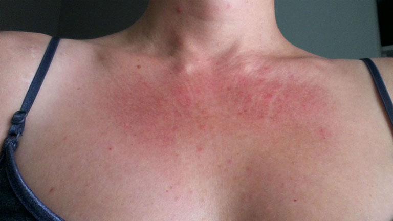 Mẩn đỏ ngứa ở cổ không chỉ gây mất thẩm mỹ mà còn ảnh hưởng nghiêm trọng tới sức khỏe người bệnh