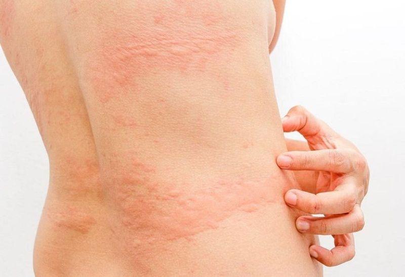 Da nổi mẩn đỏ ngứa sau tắm có thể do bị mề đay