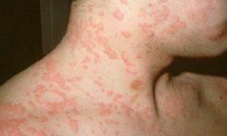 Nổi mề đay khắp người trên da sẽ có nhiều nốt đỏ