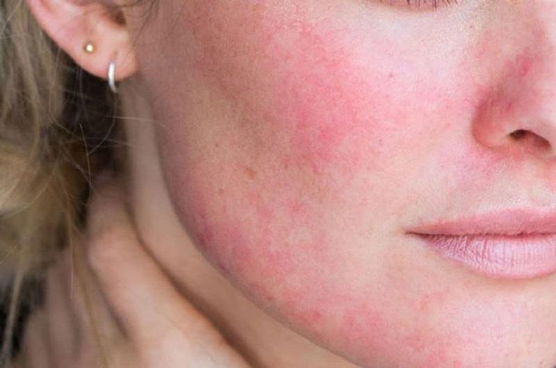 Người bị nổi mề đay ở mặt trên da sẽ có những vùng ban đỏ xuất hiện