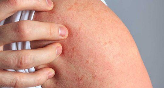 Nổi mề đay ở tay thường có nốt tròn đỏ xuất hiện kèm theo cảm giác nóng rát