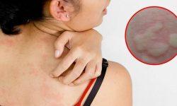 Nổi mày đay da sẽ bị phát ban với giới hạn rõ ràng với vùng da thường
